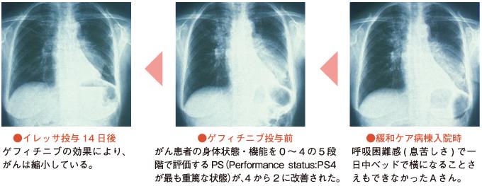 x-ray01
