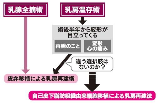 乳がん手術の選択肢としては、乳腺全摘術と乳房温存術があるが、日本では乳房温存術が選ばれることが多く、治療の6割以上を占める。乳腺全摘術の場合、皮弁移植や人工物による乳房再建術が行われる。乳房温存術においても、術後に乳房の変形や陥凹が目立つ場合があるが、適した再建方法がないのが実情である。