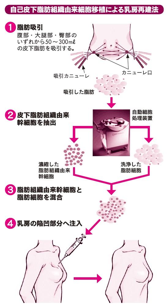 ①移植用の脂肪細胞は、患者さんの腹部、大腿部(だいたいぶ)、臀部(でんぶ)のいずれから採取。皮膚を数カ所1〜2㎝切開し、ニューレ(体液の吸引や薬液の注入などに用いる管)を挿入して皮下脂肪を吸引し、皮膚切開線を縫合する。 ②吸引した脂肪細胞を「自動細胞処理装置」に入れて洗浄し、半分を遠心処理して脂肪組織由来幹細胞を採取する。 ③濃縮した脂肪組織由来幹細胞と必要量の脂肪細胞を混合する。 ④患者さんの乳房の陥凹部分に注射器で数カ所刺して注入する。 (鳥取大学医学部附属病院ホームページより)