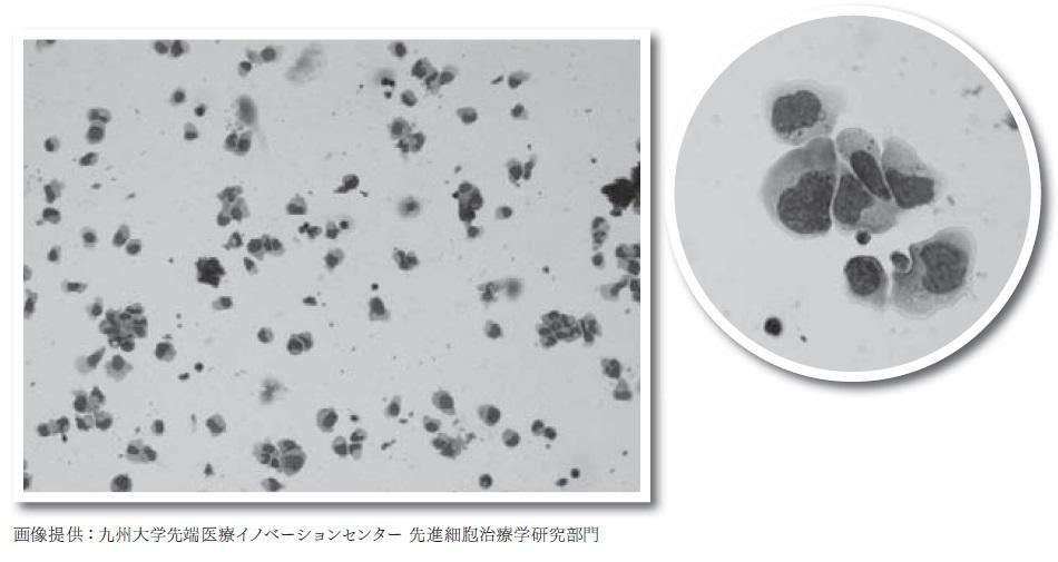 健常者から採取・培養し、染色したリンパ球。NK細胞は、他のリンパ球よりも細胞が大きく、広い胞体(濃い色に染まった核の周りの白い部分)に粒が目立つのが特徴。この粒にはがん細胞を殺す物質が含まれるが、培養したNK細胞にも粒が見られることから、機能を保ったまま増殖していることが分かる。
