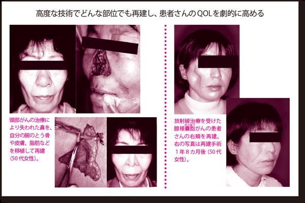 vol.7_saizensen_04