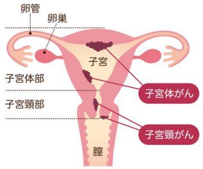 ん 子 宮頸 が