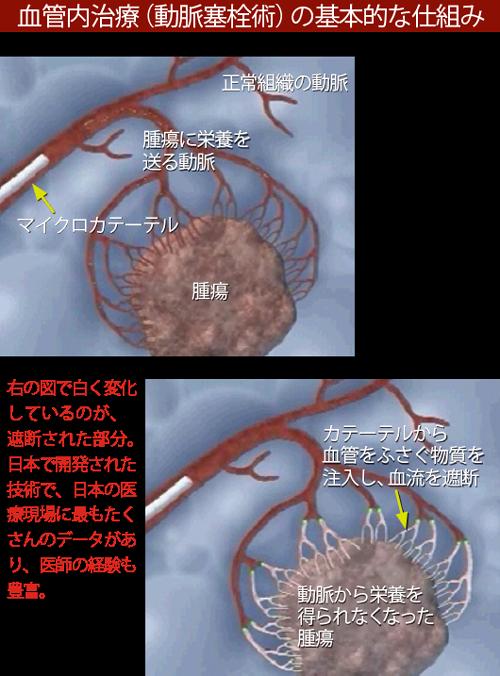 vol.8_saizensen_01