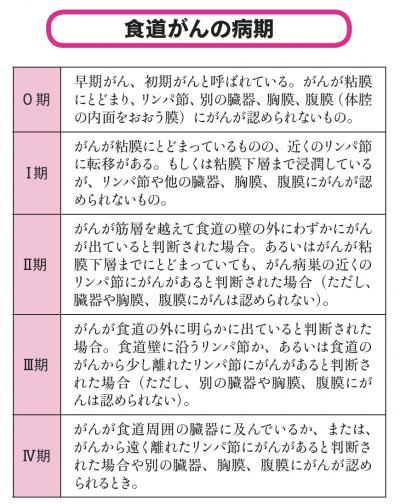 食道がんの病期(ステージ)の基準