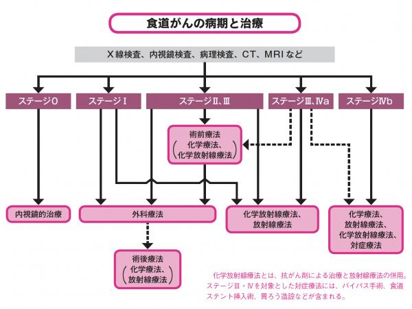 食道がんの病期(ステージ)別治療法