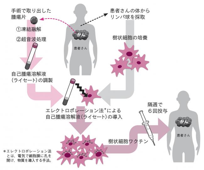 食道がん再発予防のための樹状細胞ワクチン療法の臨床研究